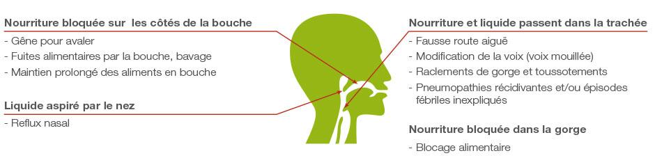 schema-detecter-dysphagie